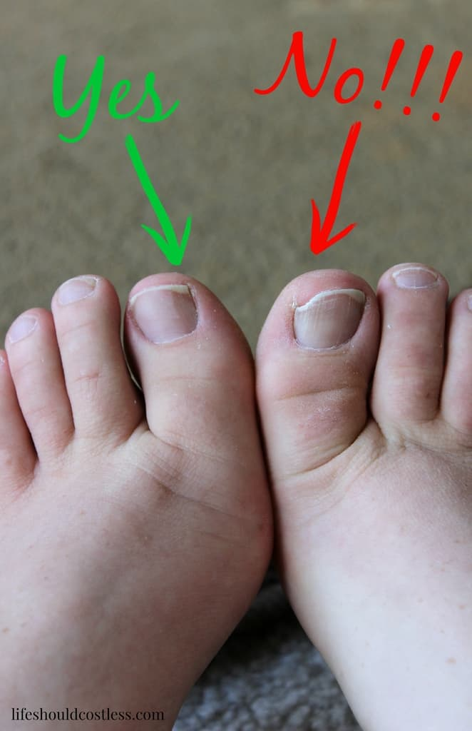 The Secret To Life Without Ingrown Toenails - Life Should Cost Less